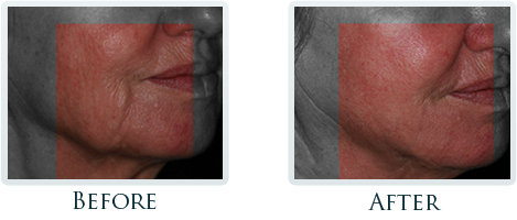 Infini Radiofrequency Microneedling Portland - Before and After Case 1