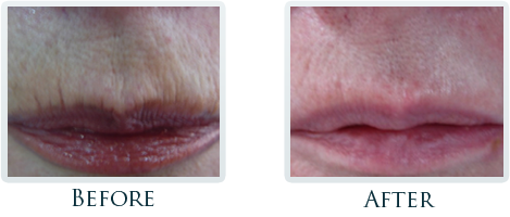 Infini Radiofrequency Microneedling Portland - Before and After Case 10