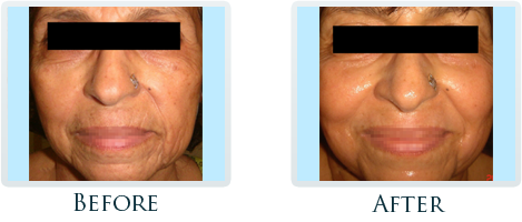 Infini Radiofrequency Microneedling Portland - Before and After Case 11