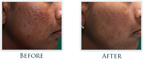 Infini Radiofrequency Microneedling Portland - Before and After Case 12