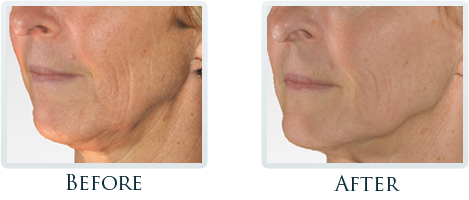 Infini Radiofrequency Microneedling Portland - Before and After Case 14