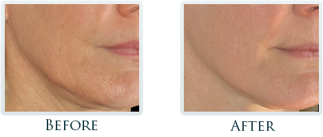 Infini Radiofrequency Microneedling Portland - Before and After Case 15