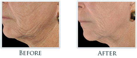 Infini Radiofrequency Microneedling Portland - Before and After Case 16