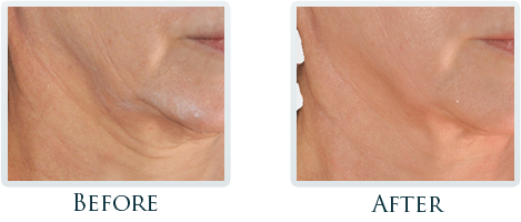 Infini Radiofrequency Microneedling Portland - Before and After Case 18