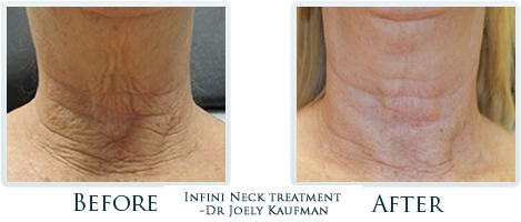 Infini Radiofrequency Microneedling Portland Before and After Case 19