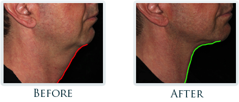 Infini Radiofrequency Microneedling Portland - Before and After Case 2