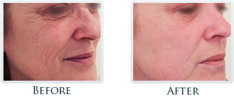 Infini Radiofrequency Microneedling Portland - Before and After Case 3