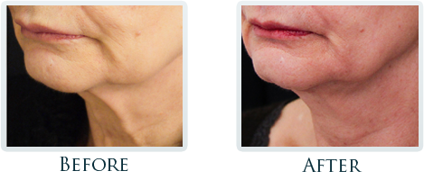 Infini Radiofrequency Microneedling Portland - Before and After Case 4