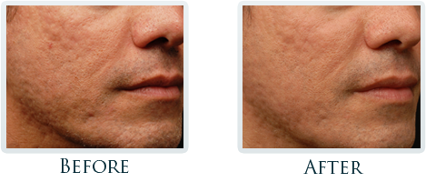 Infini Radiofrequency Microneedling Portland - Before and After Case 5
