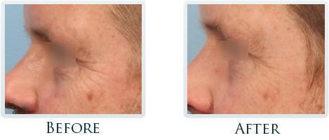 Infini Radiofrequency Microneedling Portland - Before and After Case 6