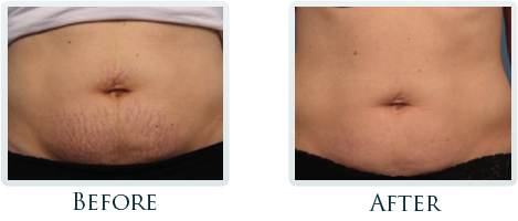 Infini Radiofrequency Microneedling Portland - Before and After Case 7