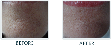 Infini Radiofrequency Microneedling Portland - Before and After Case 8