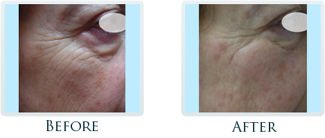 Infini Radiofrequency Microneedling Portland - Before and After Case 9