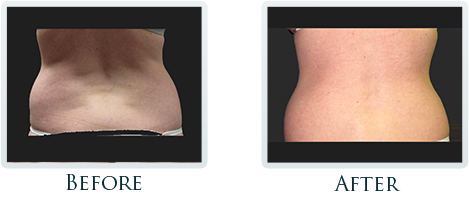 Lift And Tighten Skin Portland - Before and After Case 1