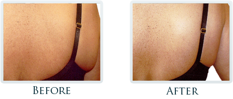 Lift And Tighten Skin Portland - Before and After Case 2