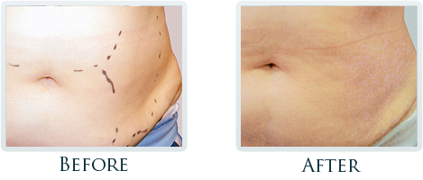 Lift And Tighten Skin Portland - Before and After Case 3