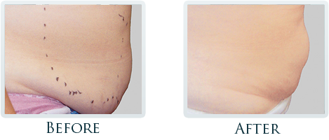 Lift And Tighten Skin Portland - Before and After Case 4