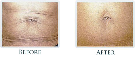 Lift And Tighten Skin Portland - Before and After Case 5