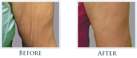 Lift And Tighten Skin Portland - Before and After Case 6