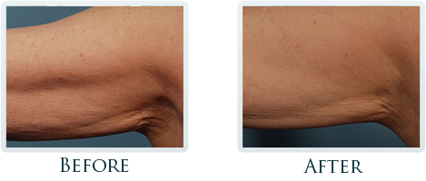 Lift And Tighten Skin Portland - Before and After Case 7