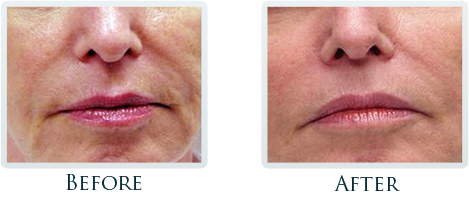 Non-Surgical Facelift Portland - Before and After Case 1