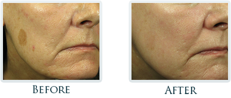 Non-Surgical Facelift Portland - Before and After Case 9