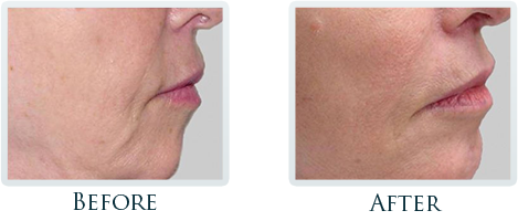 Non-Surgical Facelift Portland - Before and After Case 2