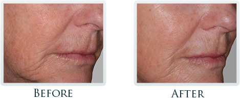 Non-Surgical Facelift Portland - Before and After Case 4