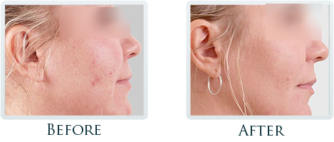 Non-Surgical Facelift Portland - Before and After Case 5