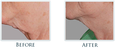 Non-Surgical Facelift Portland - Before and After Case 6