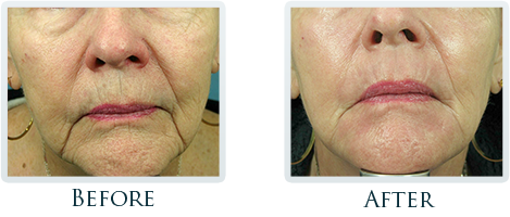 Non-Surgical Facelift Portland - Before and After Case 7