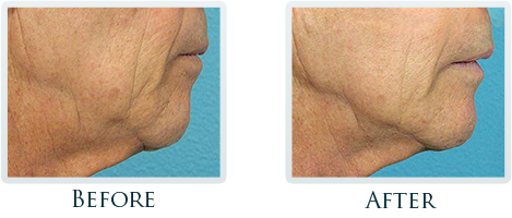 Non-Surgical Facelift Portland - Before and After Case 8