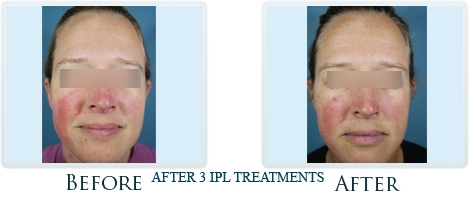 Rosacea And Redness Reduction Portland -  Before and After Case 4