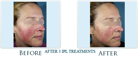 Rosacea And Redness Reduction Portland -  Before and After Case 3