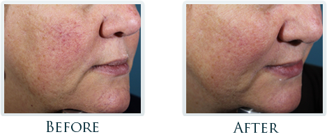 Rosacea And Redness Reduction Portland -  Before and After Case 2