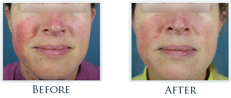 Rosacea And Redness Reduction Portland -  Before and After Case 5
