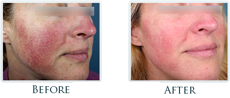 Rosacea And Redness Reduction Portland -  Before and After Case 6