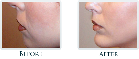 Facial Plastic Surgery Portland - Before and After Case 2