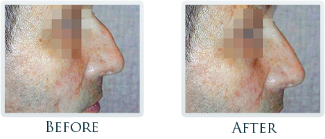 Facial Plastic Surgery Portland - Before and After Case 4