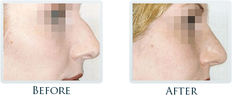 Facial Plastic Surgery Portland - Before and After Case 8