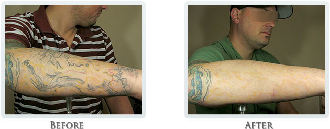 Tattoo Removal Portland Before And After 4