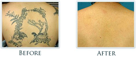 Tattoo Removal Process Portland - Smile gallery image 3