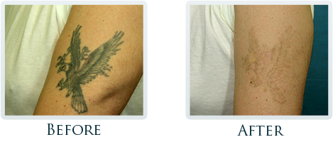 Tattoo Removal Process Portland - Smile gallery image 4
