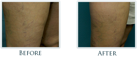 Vascular Portland - Before and After Case 3