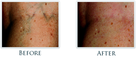 Vascular Portland - Before and After Case 2