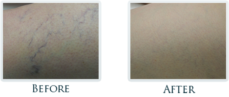 Vascular Portland - Before and After Case 5