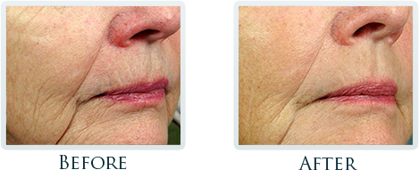 Anti-Aging Center Portland - Before and after 1