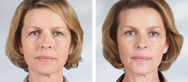 Sculptra - Before & After 2