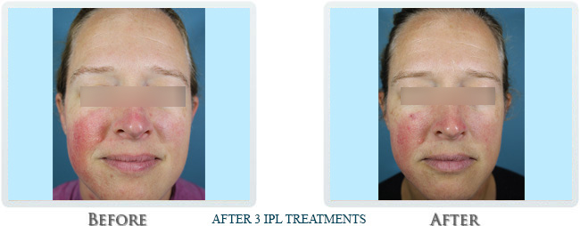 Rosacea & Redness Reduction Before and After 01