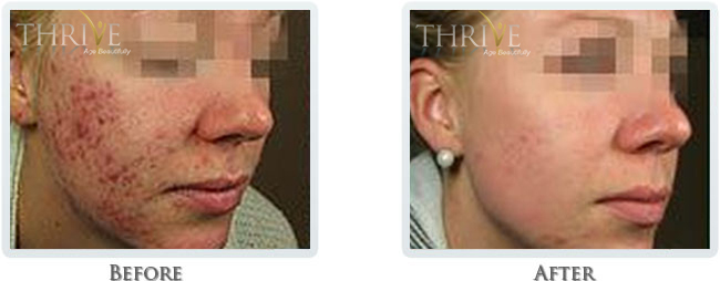 Acne & Scar Reduction Before and After 02